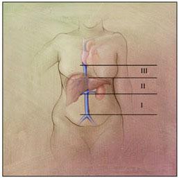 Primary tumor of the IVC