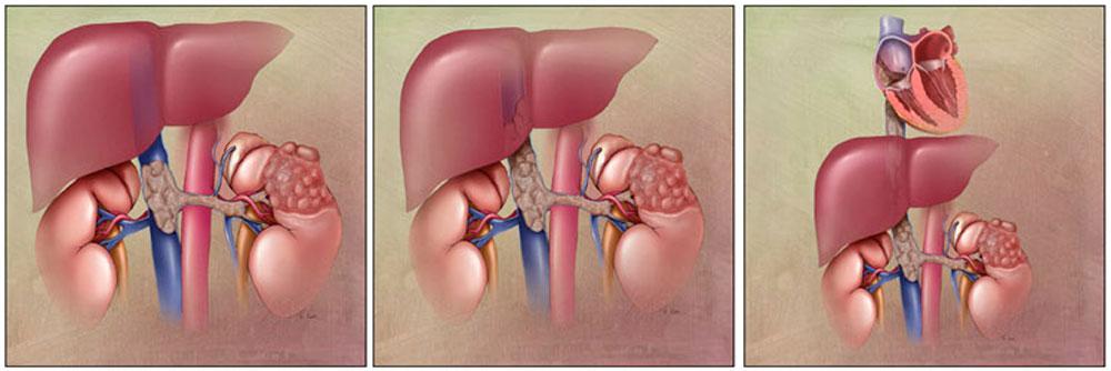 IVC thrombosis:Malignant thrombus