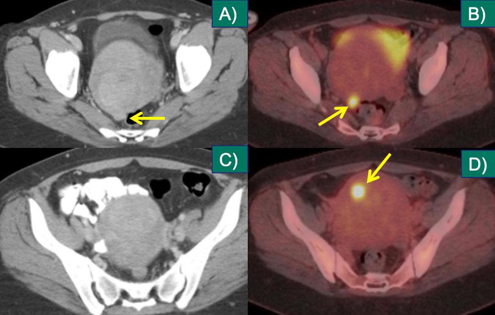 Uterine Metastasis