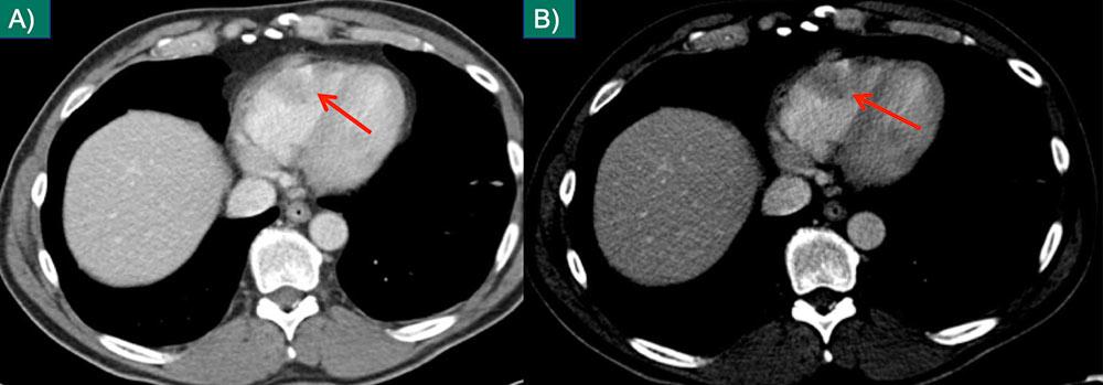 Cardiac Metastasis