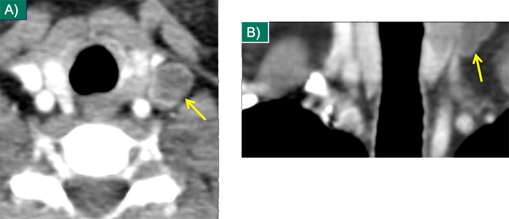 Thyroid Metastasis