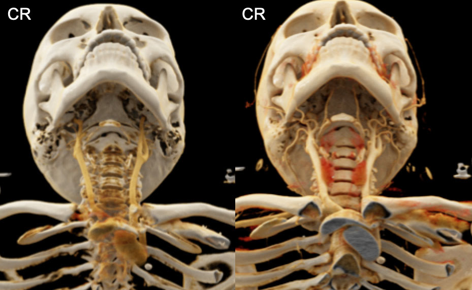 Highly Detailed Head and Neck Soft Tissue Anatomy can be Rendered