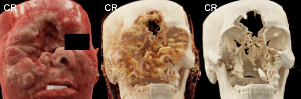 Destructive Facial Squamous Cell Carcinoma