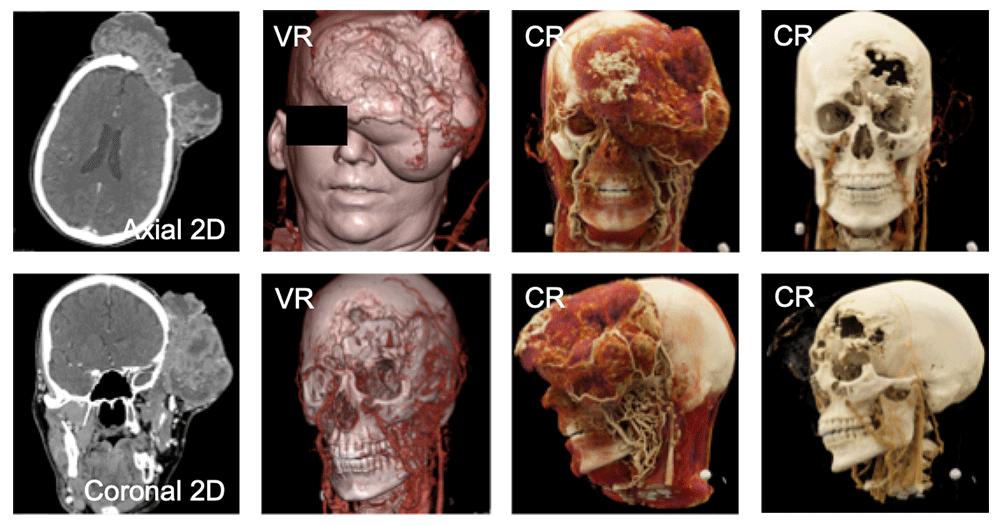Squamous Cell Carcinoma Invading the Calvarium