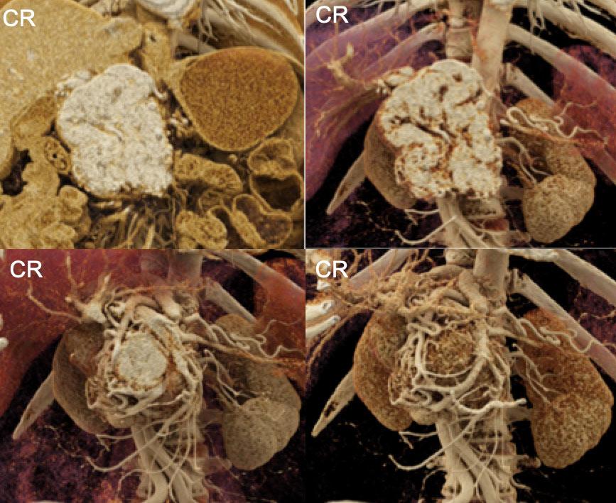 Pancreatic Neuroendocrine Tumor with Extensive Neovascularity