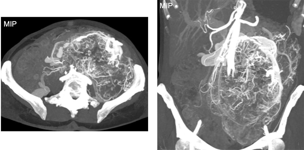 Large, Highly-Vascular Gastro-Intestinal Stromal Tumor