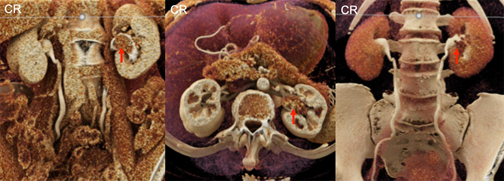 Another Example of Left Kidney Transitional Cell Carcinoma