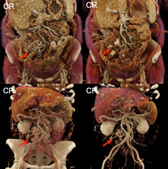 Metastatic Carcinoid Tumor