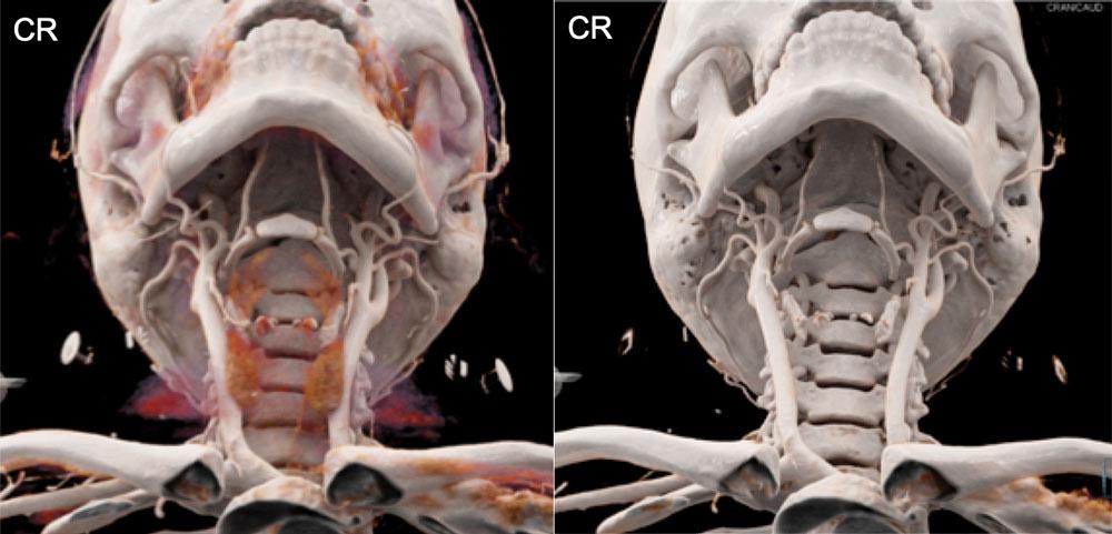 Calvarial, Skull Base, and Maxillofacial Normal Anatomy