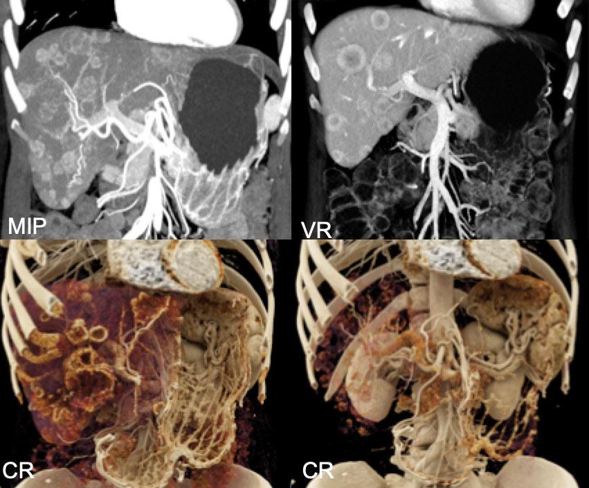 Carcinoid Liver Metastases