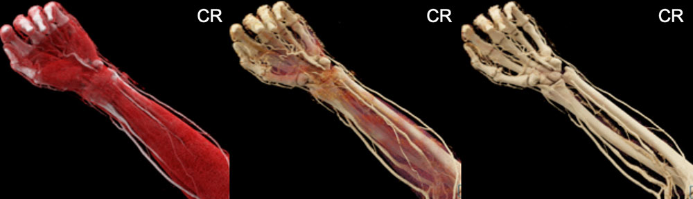 Cinematic Rendering of Forearm and Hand