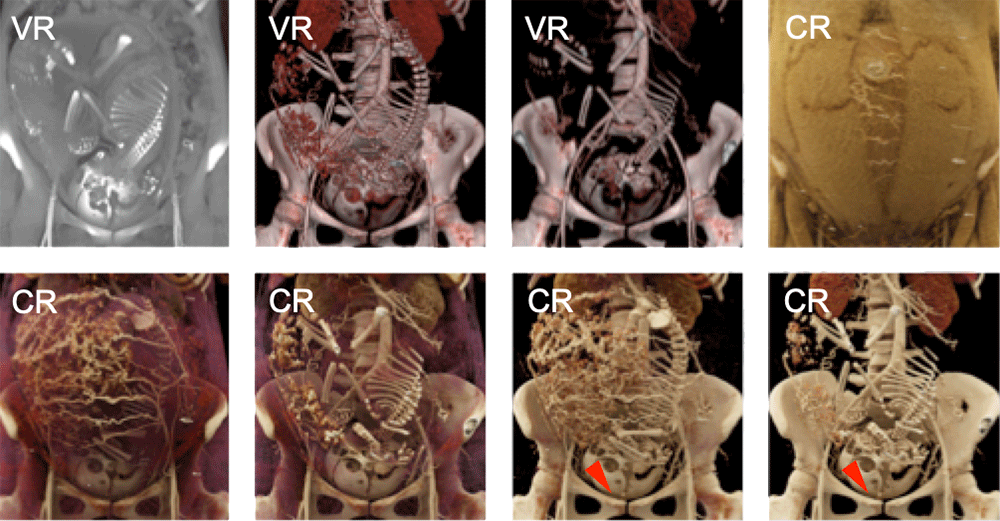 Normal Fetal and Placental Anatomy can be Well-Evaluated