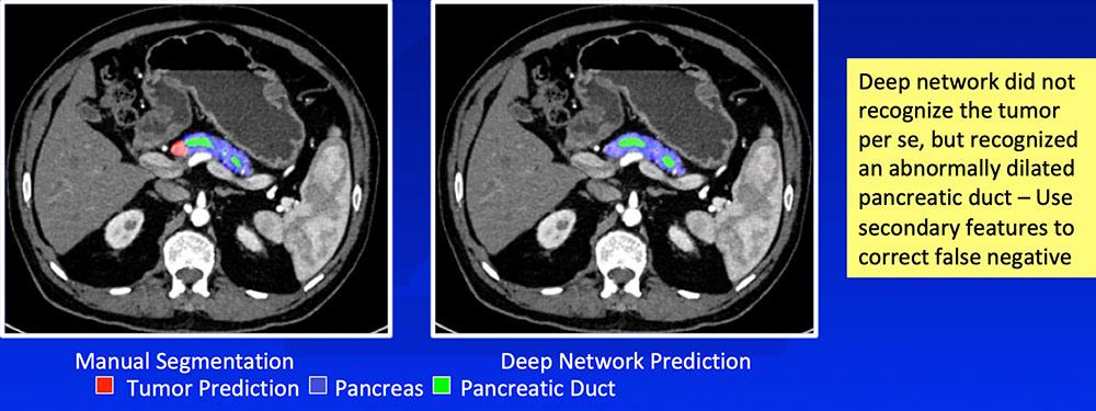 False Negative – Isoattenuating Tumors