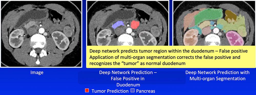 False Positive – Prediction of Tumor Outside Pancreas