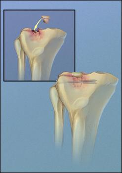 Type 3 Fracture Repair (Bone graft & lateral screw)