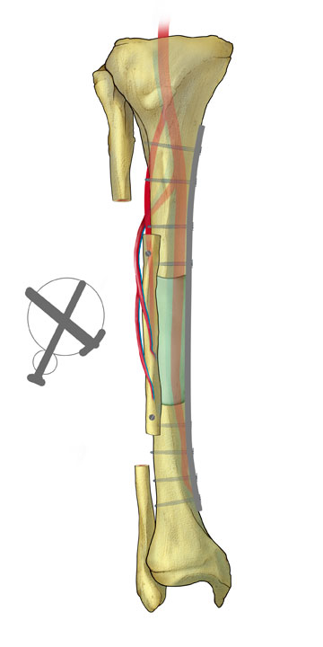 Intercalary Graft of Tibia