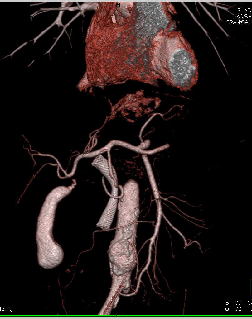 Incidental Right Adrenal Adenoma in a Patient with Pancreatic Cancer - CTisus CT Scanning