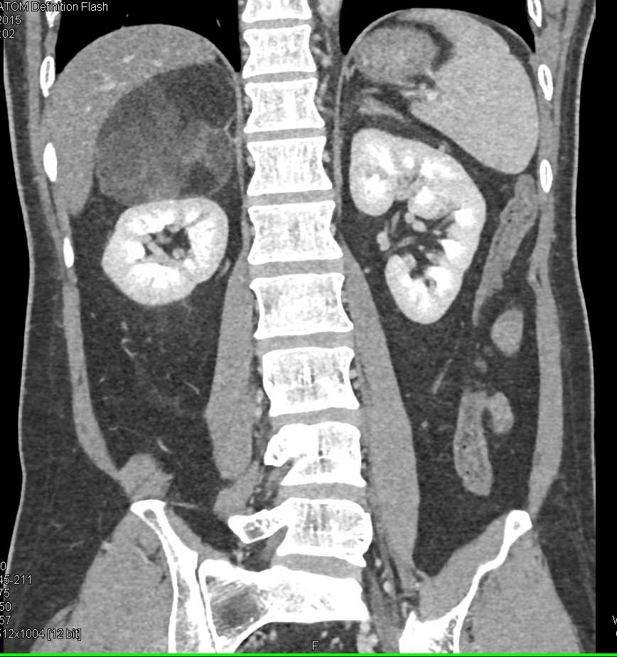 Right Adrenal Myelolipoma - CTisus CT Scanning