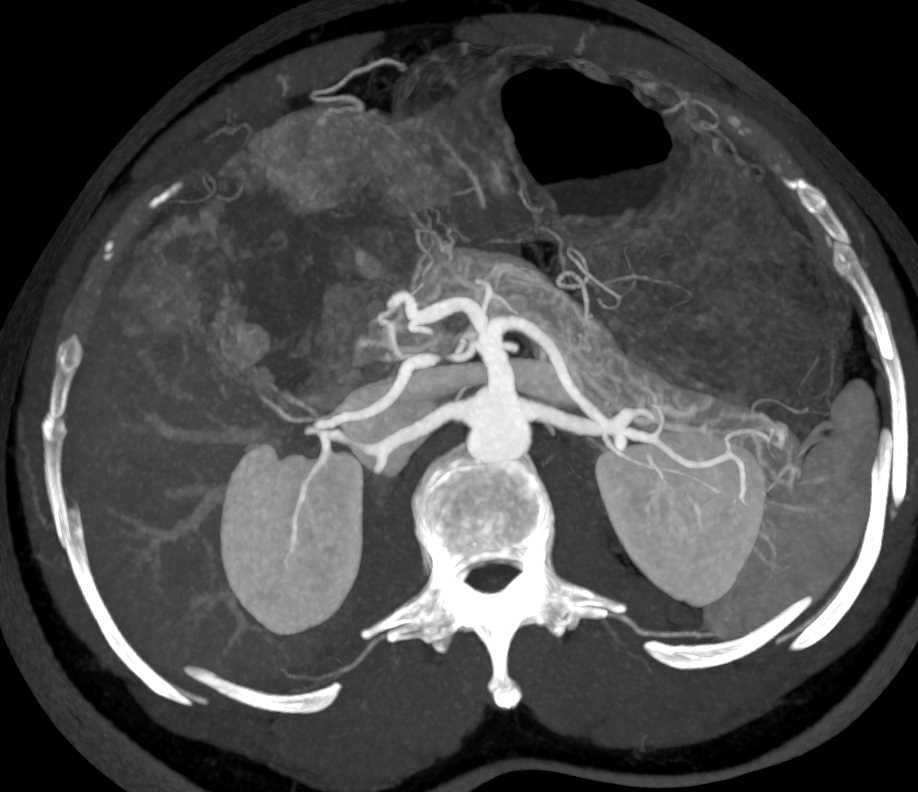 Hepatoma with Neovascularity - CTisus CT Scanning