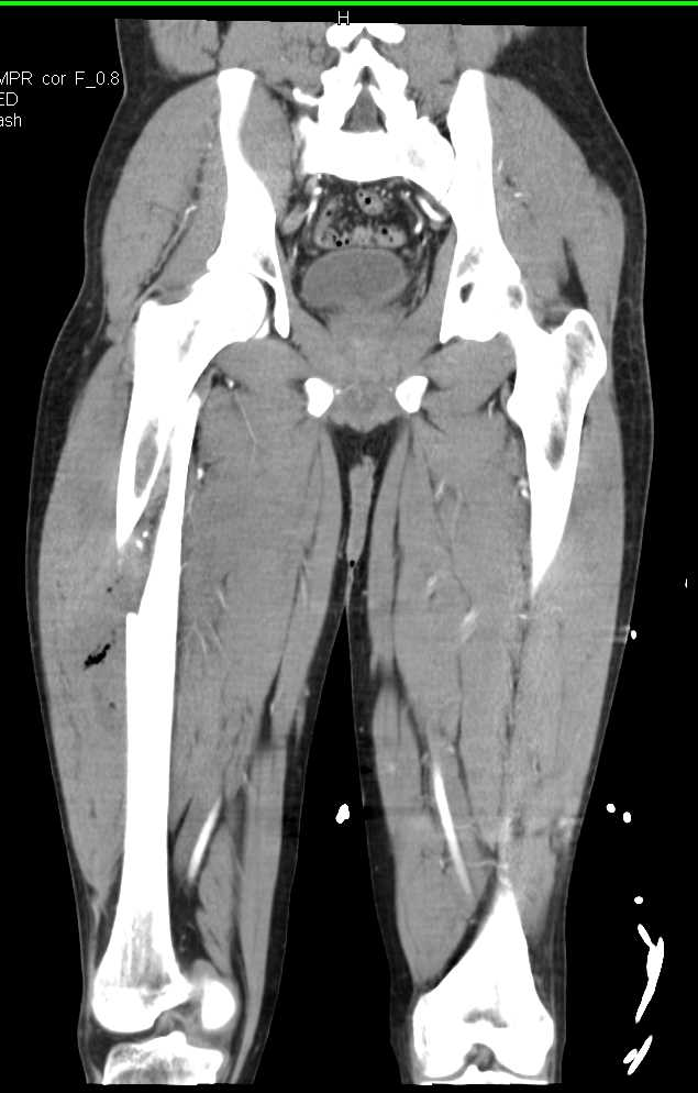 Hypotensive Patient s/p Trauma with Pneumothorax and Femur Fracture - CTisus CT Scanning