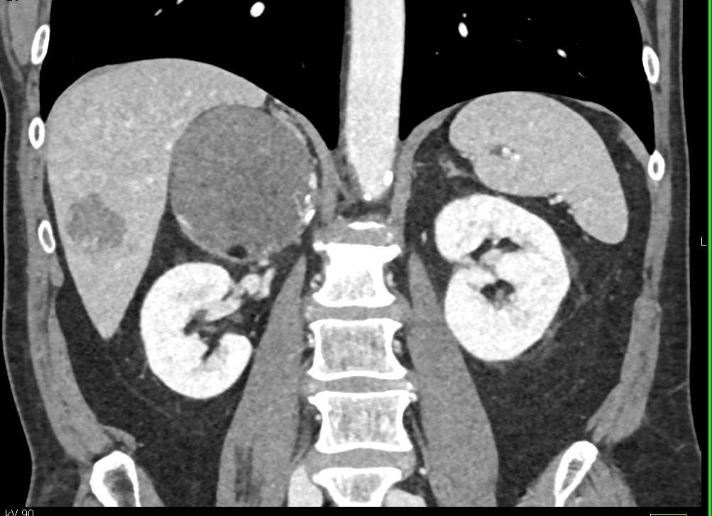 Right Adrenal Myelolipoma - CTisus CT Scan