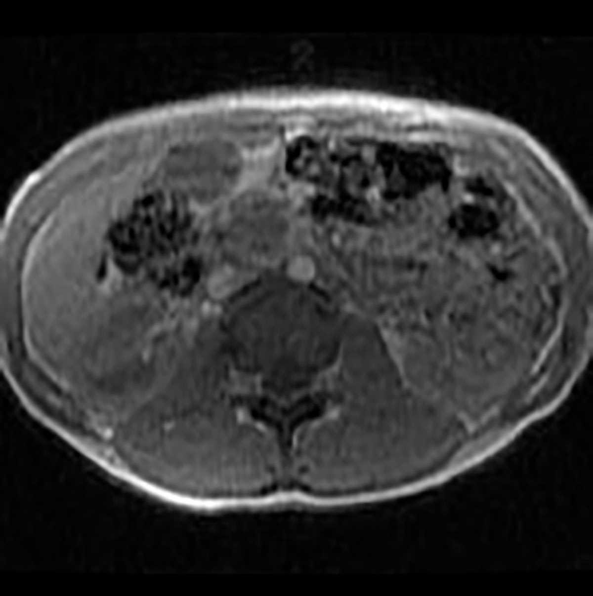 Solid pseudopapillary tumor - CTisus CT Scanning