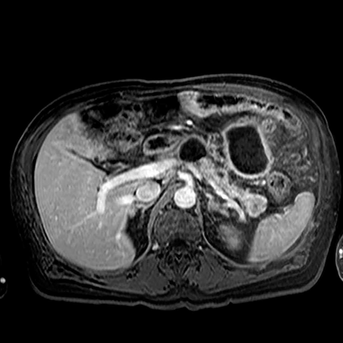 Chronic pancreatitis - CTisus CT Scanning