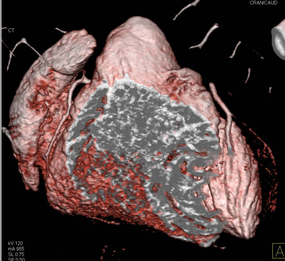 CTA: 3D Mapping of the Coronary Arteries - Cardiac Case