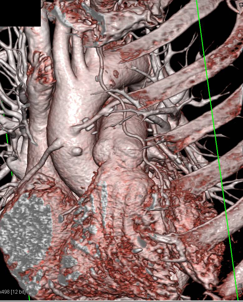 CCTA: Coronary Artery Bypasses with LIMA and 3 Venous Grafts , Two ...