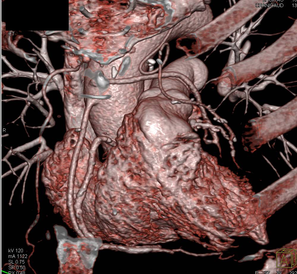 CTA with 2 Bypass Grafts Following CABG Ncely Seen and Patent