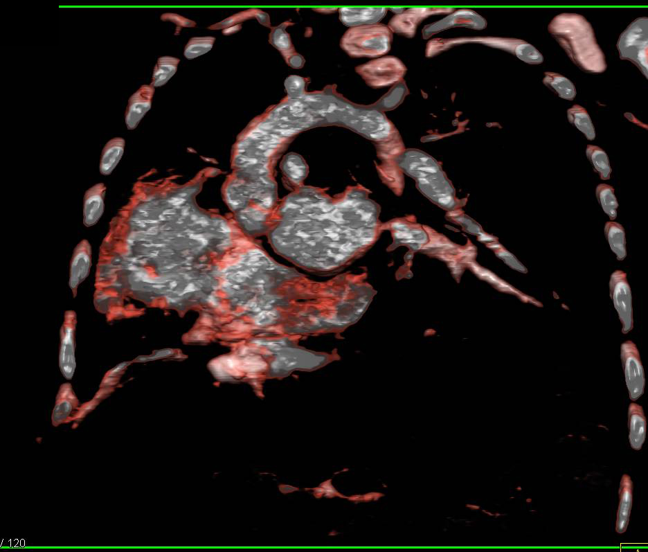 Post Repair of Tetrology pf Fallot - CTisus CT Scanning