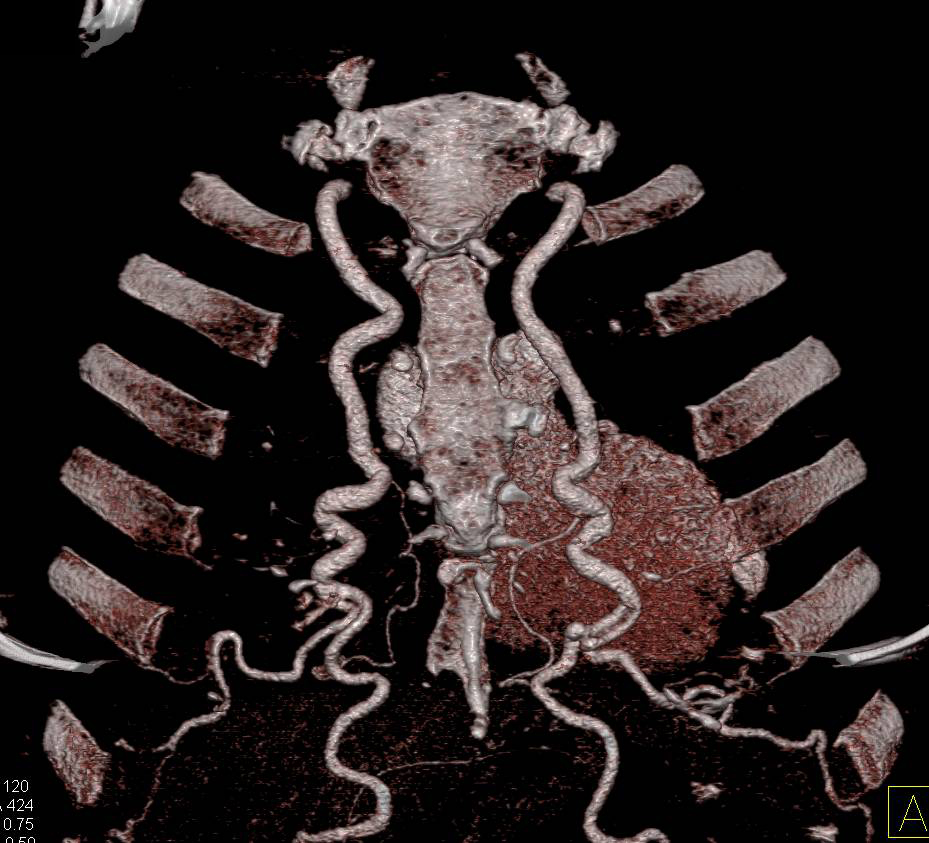 Coarctation of the Aorta with Intercostal Collaterals and Dilated Internal Mammary Arteries