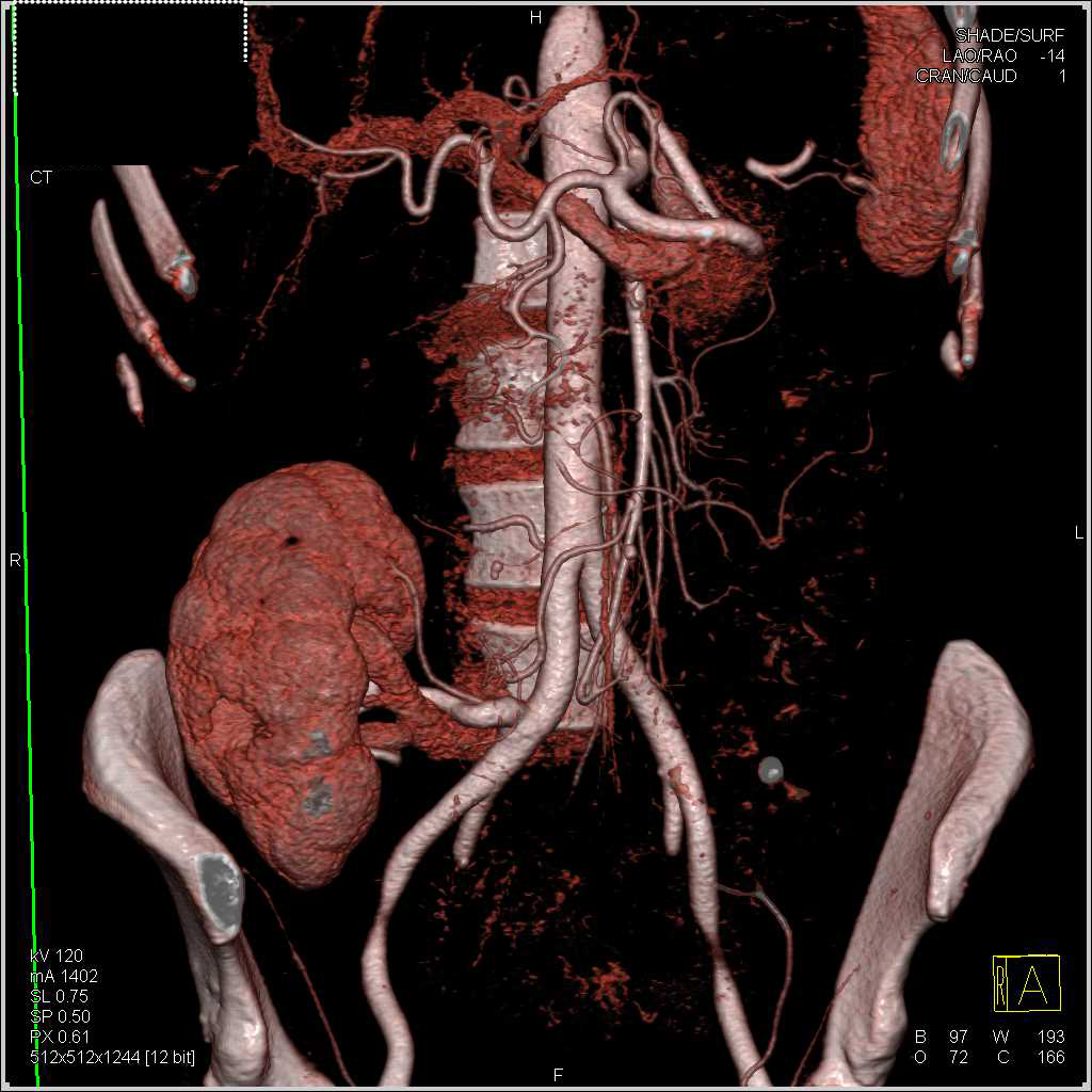 Pericardial Effusion in Renal Transplant Patient - CTisus CT Scan