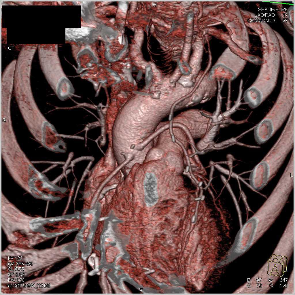 Charmant Seeleys Anatomie Und Physiologie Zeitgenössisch - Anatomie ...