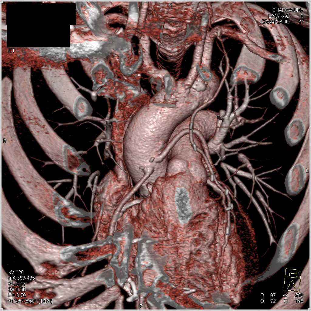 Atemberaubend Lima Arterie Anatomie Galerie - Menschliche Anatomie ...