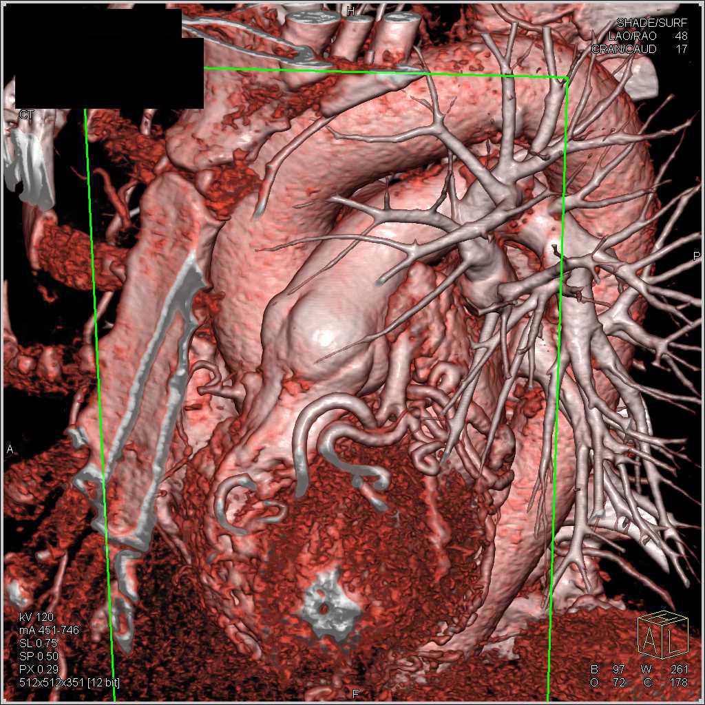 Left Anterior Descending Coronary Artery Aneurysm