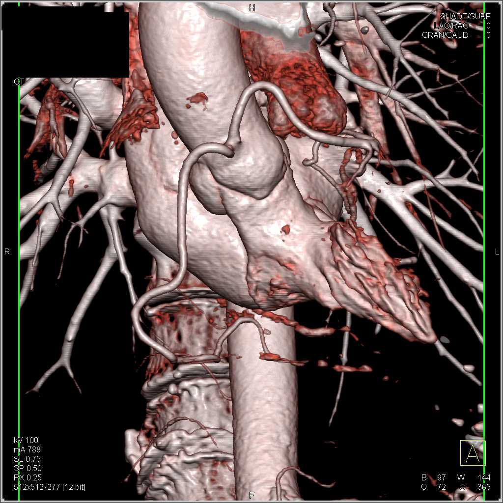 Left Coronary Artery Arises off the Right Cusp - CTisus CT Scanning