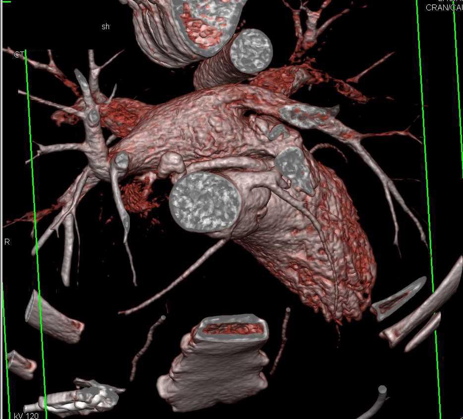 CCTA:Left Coronary Artery Aneurysm - CTisus CT Scanning