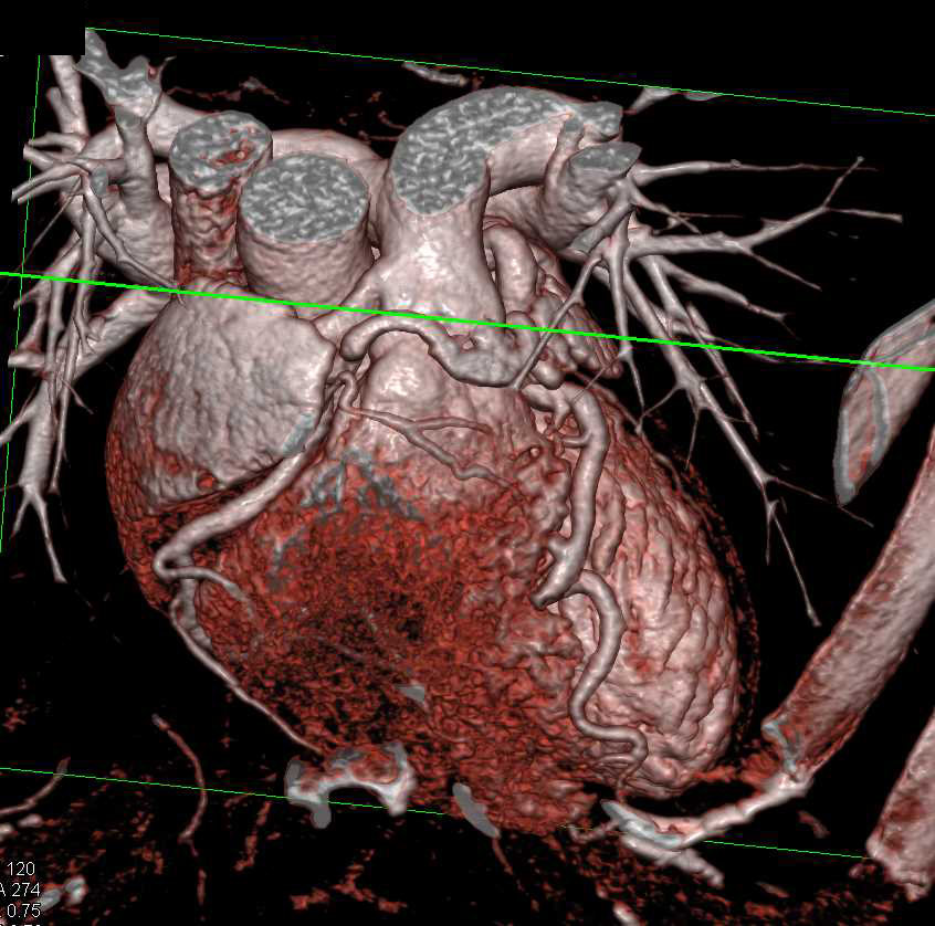 RCAPA or Anomalous Origin of the Right Coronary Artery off the Pulmonary Artery - CTisus CT Scanning