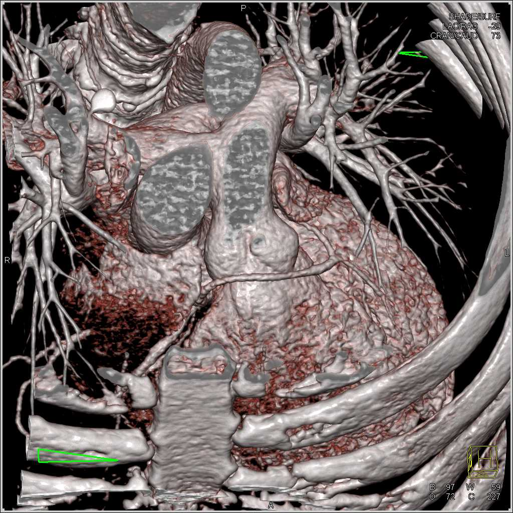 CCTA: Let Coronary Artery Arises off the Right Cusp - CTisus CT Scanning