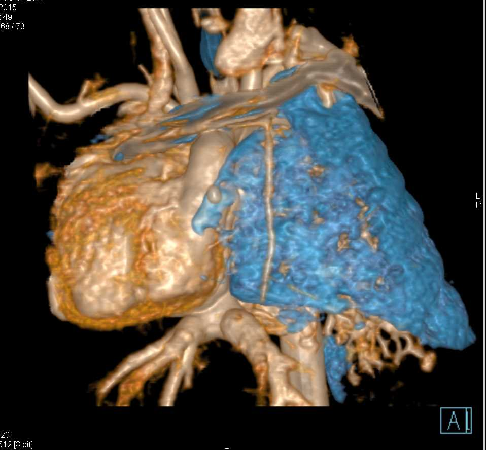 Collapsed Right Lung in Patient with Congenital Heart Disease - CTisus CT Scanning