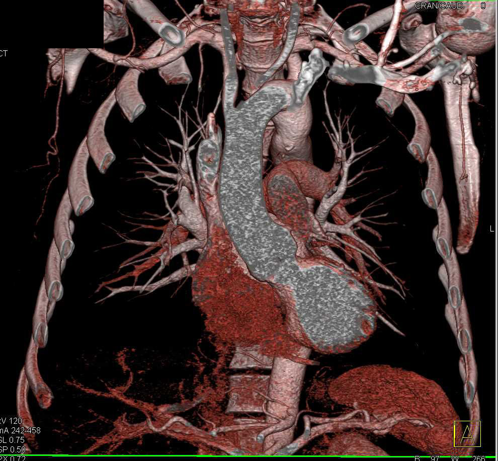 Prior Repair of Coarctation of the Aorta - CTisus CT Scanning