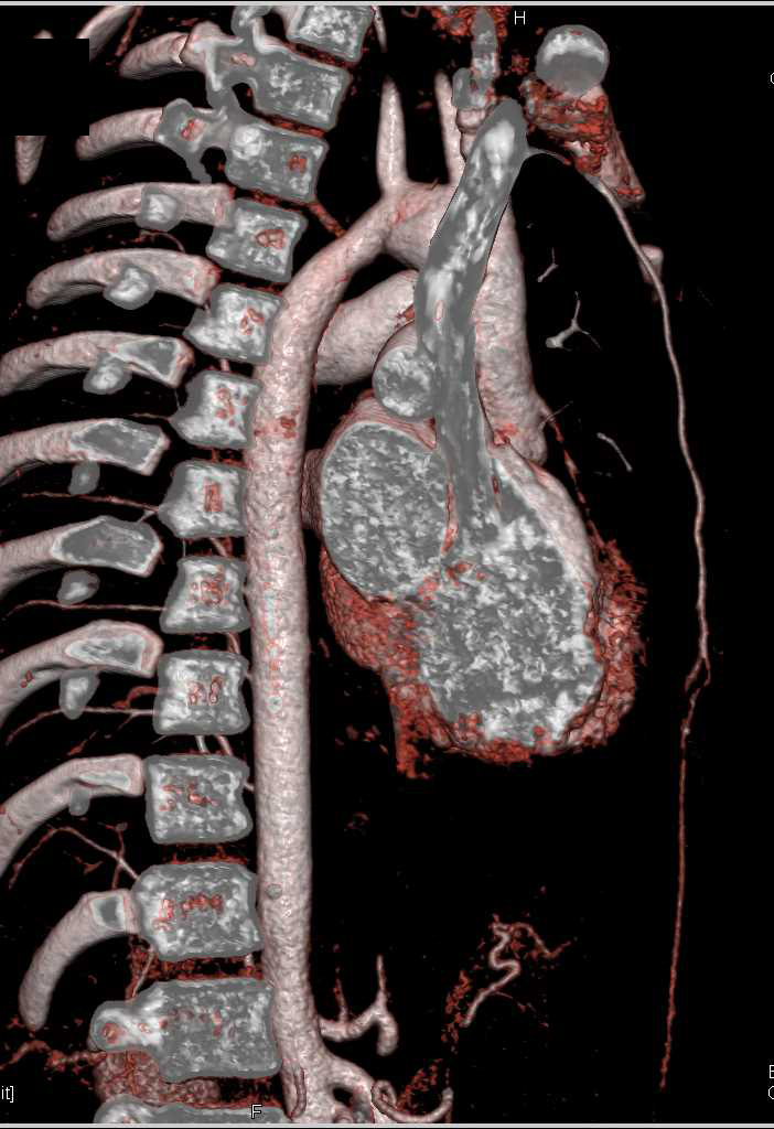 Persistent Left SVC - CTisus CT Scanning