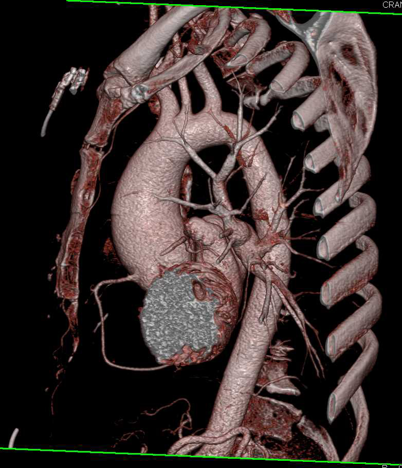 Thrombus on the Aortic Valve - CTisus CT Scanning