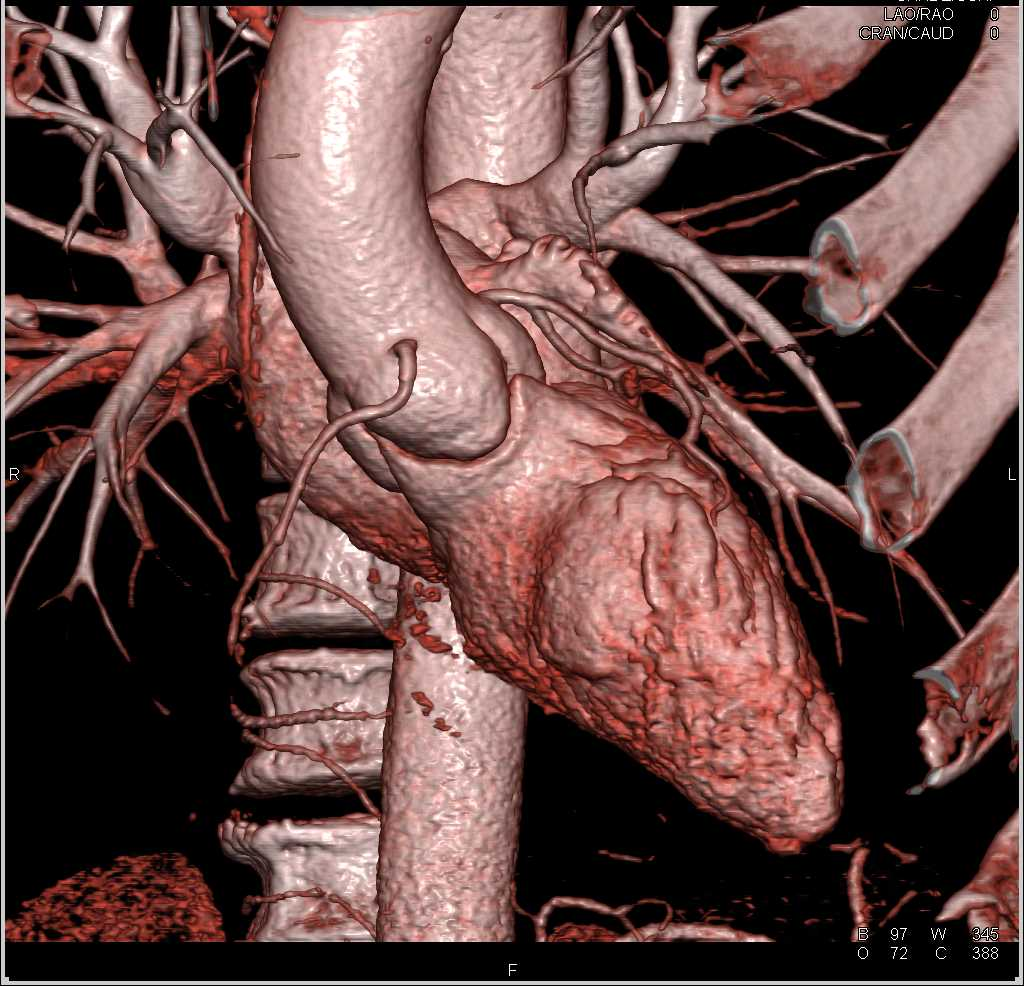 CCTA-Normal Coronary Arteries - CTisus CT Scanning