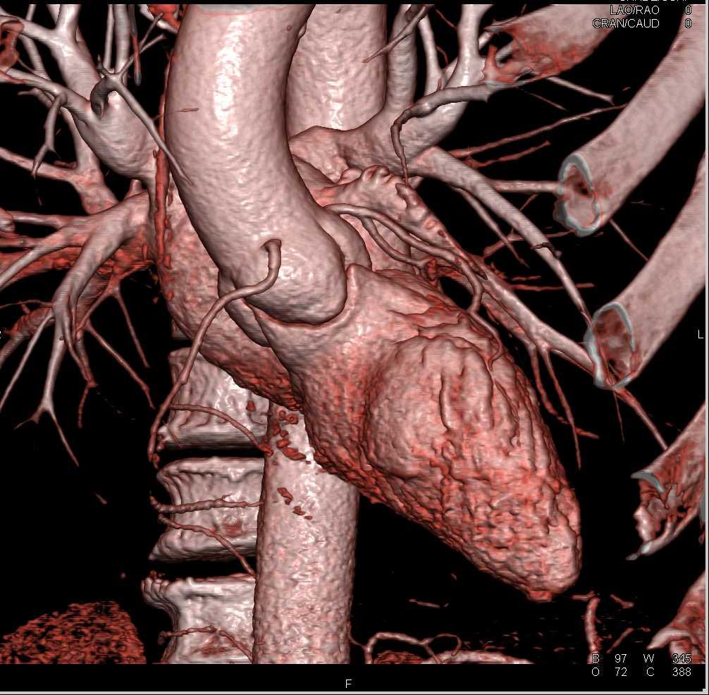 CCTA-Normal Coronary Arteries - CTisus CT Scanning