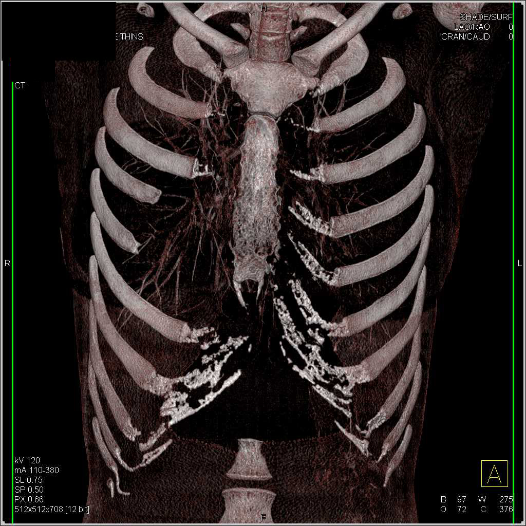 Aortic Valve repair - CTisus CT Scanning