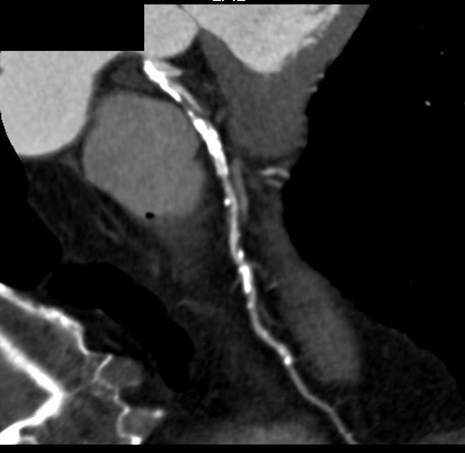 CCTA: High Grade Stenosis LAD - CTisus CT Scanning