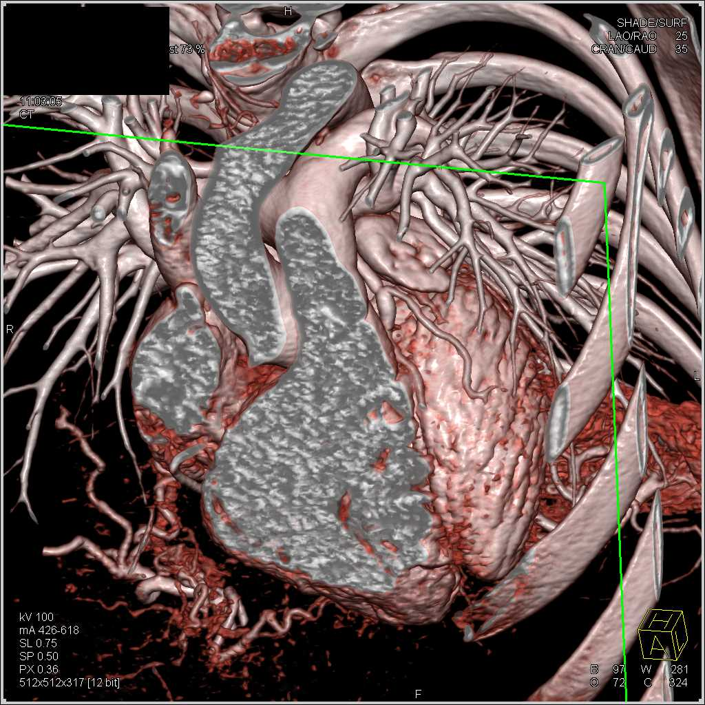 Mild Coronary Artery Disease Especially in the Left Anterior Descending Artery (LAD) - CTisus CT Scan