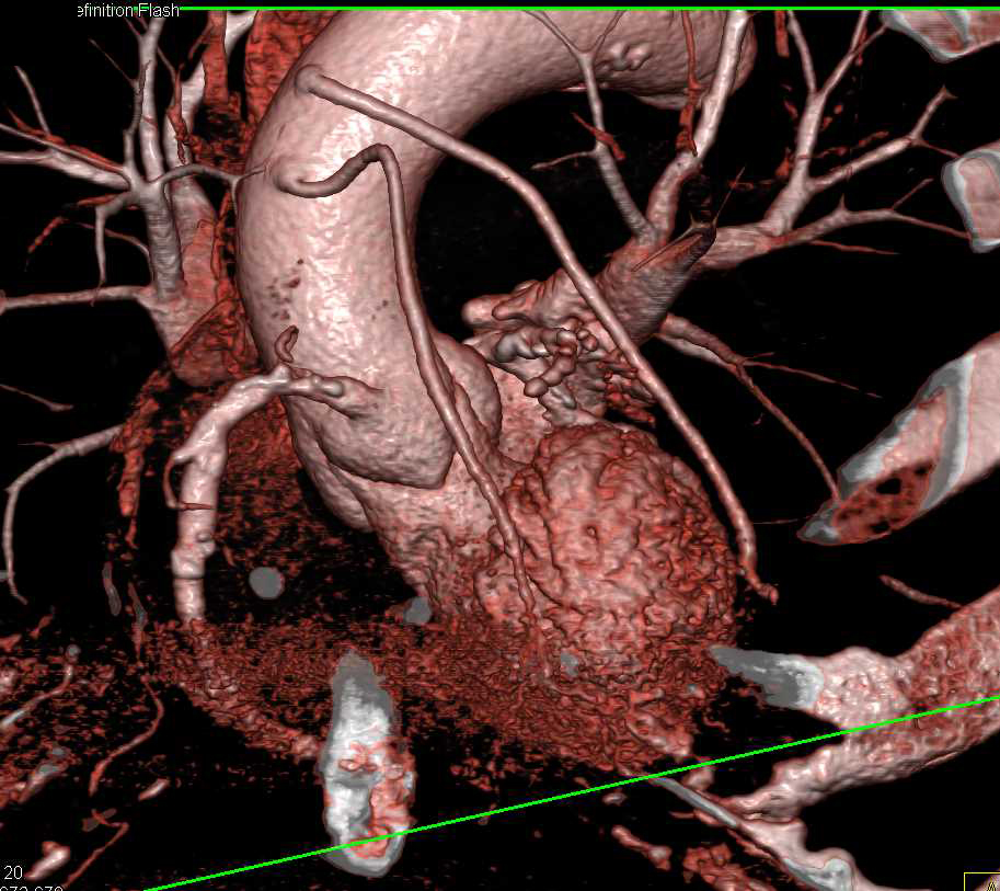 CABG with 3D VRT of the Bypass Grafts - CTisus CT Scan